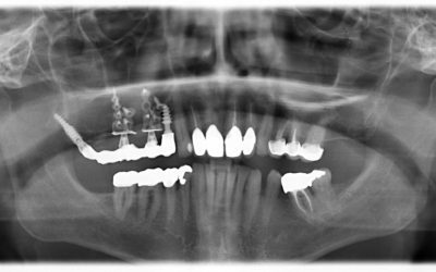 Treatment option in the atrophied maxilla without bonegraft and without sinuslift